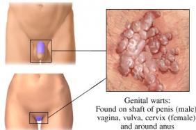21 Май 2013. admin. генитальный герпес симптомы. генитальный герпес лечение.  Генитальным герпесом называют довольно...