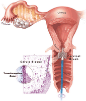 Natural treatment for HPV infections (genital warts) and
